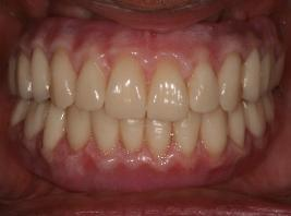 patient after complete replacement of upper and lower teeth with dental implants and fixed prostheses in one day by Dr. Monarres