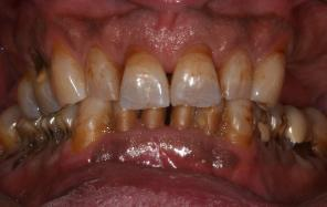 Patient that presented at Dr. Monarres office with terminal dentition looking for the best solution to his condition.