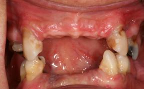 Patient with non-restorable and missing teeth