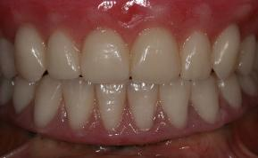 Replacement of complete dentition with fixed dental implant prostheses